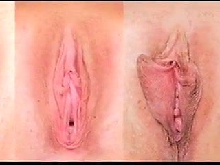 Pussy Clit